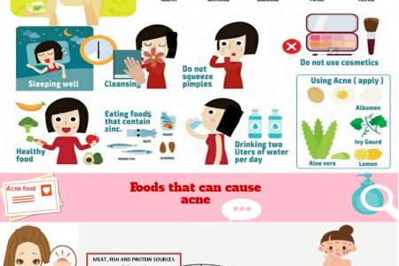 Acne problems? Avoid these Foods that can cause Acne Infographic