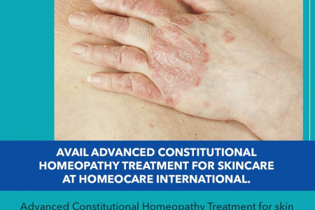 Advanced Constitutional Homeopathy Treatment for Skin Care Infographic