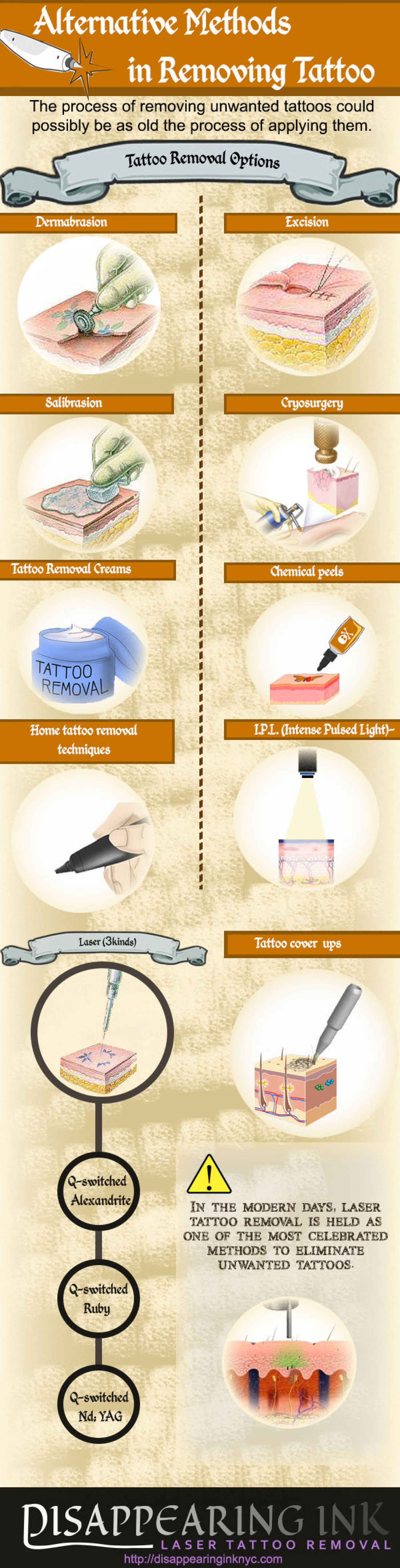 Alternative Methods In Removing Tattoos Infographic