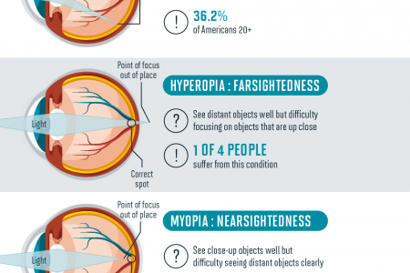 Are You Caring For Your Eyesight? Infographic