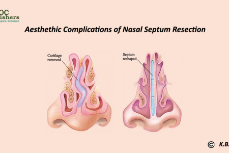 Article - Aesthethic Complications of Nasal Septum Resection Infographic