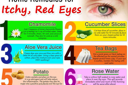 Ayurvedic Home Remedies for Itchy Red Eyes Infographic