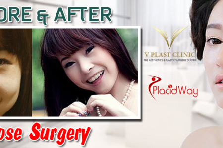 Before and after nose surgery| Placidway Infographic