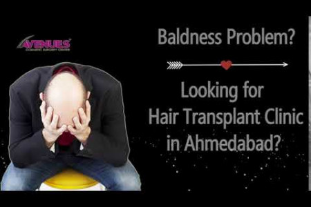 Best Hair Transplant Clinic in Ahmedabad Infographic