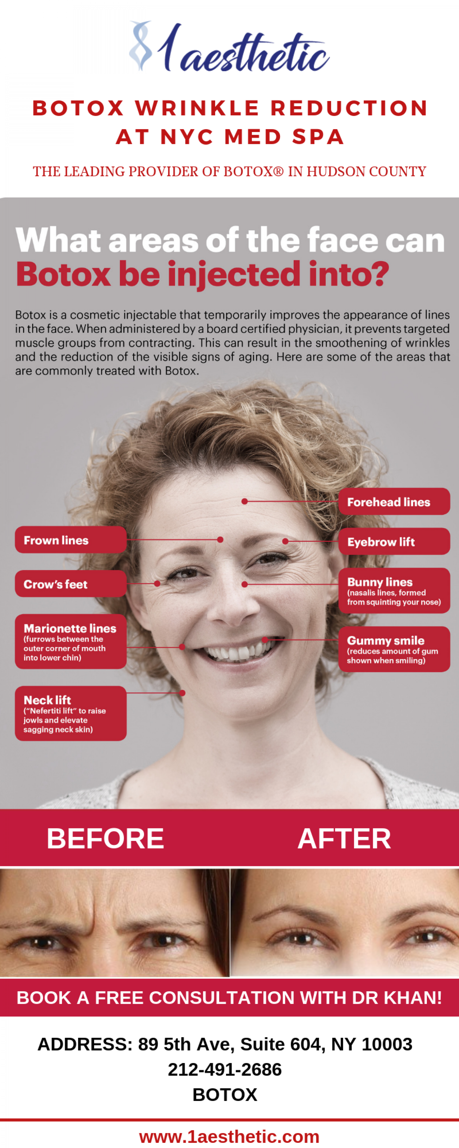 Botox Wrinkle Reduction At NYC MED SPA Infographic