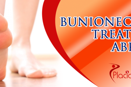 Bunionectomy Treatment Abroad Infographic