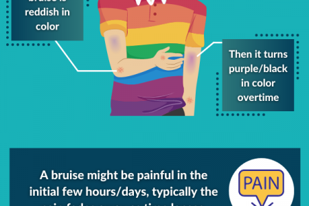 Causes of Bruises and STD Symptoms Infographic