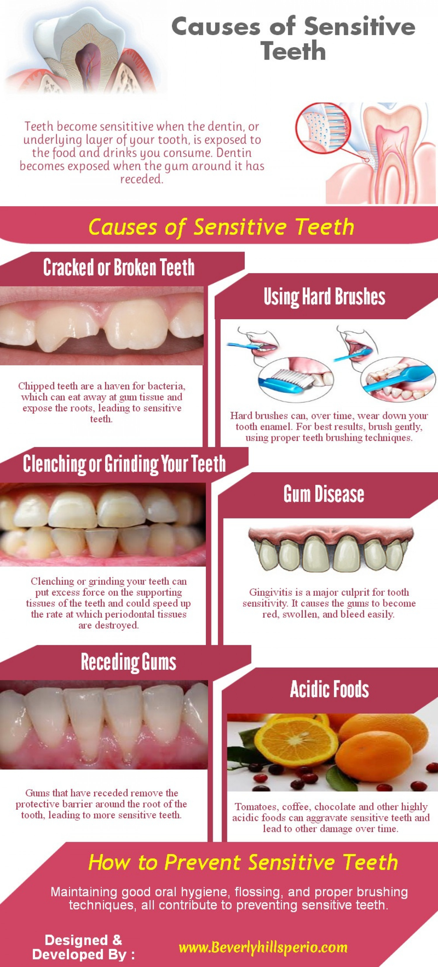 Causes of Sensitive Teeth Infographic