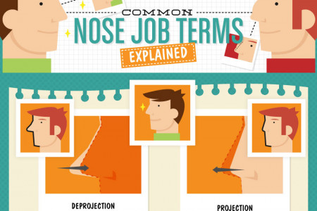 Common Nose Job Terms Explained Infographic
