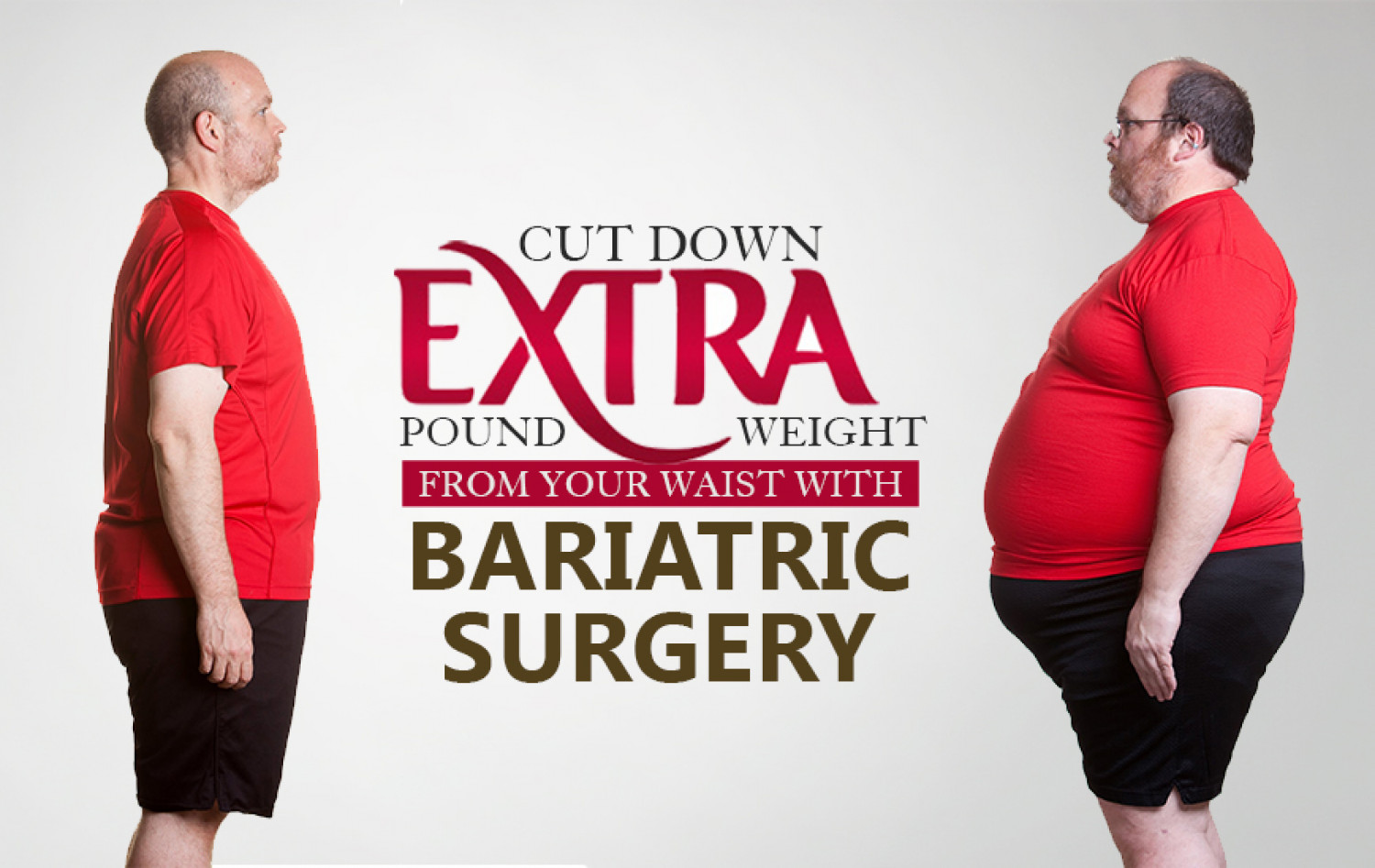 Cut Down More Extra Pound Weight from Your Waist via Bariatric Surgery Infographic