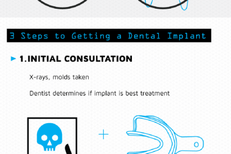 Decoding Dental Implants Infographic