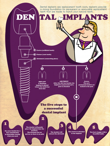 Dental Implants and How They Work Infographic