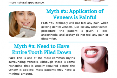 Dental Veneers – Myth and Reality Infographic