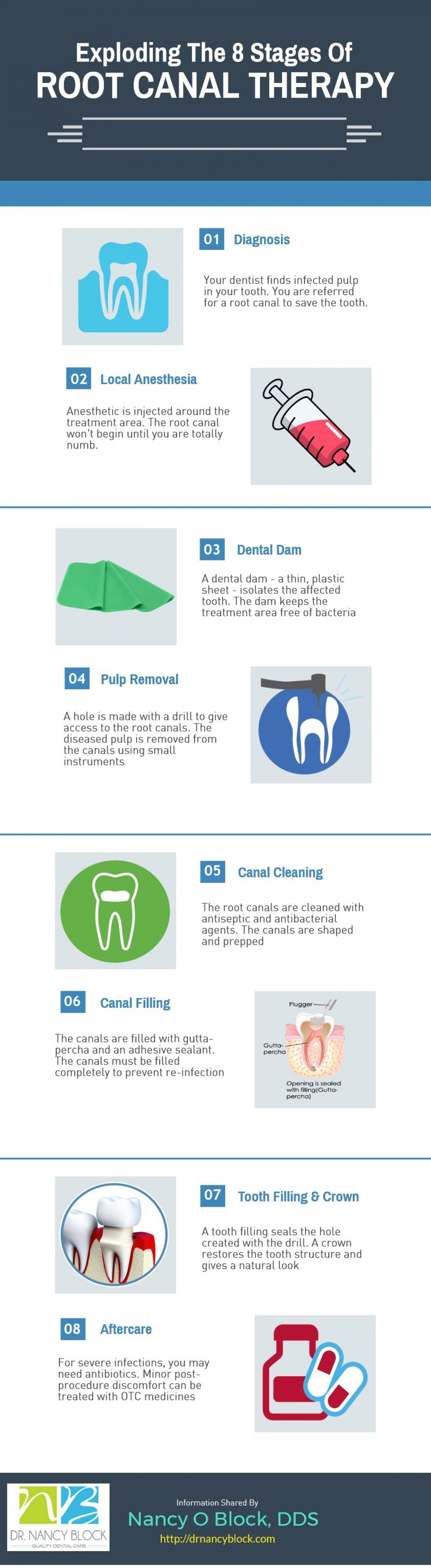 Different Stages Of Root Canal Therapy Infographic