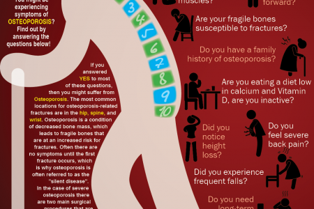 Do You Suffer From OSTEOPOROSIS ? Infographic
