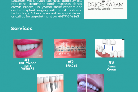 Dr Joe Karam Cosmetic dental Care Clinic In Lebanon Infographic
