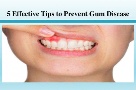Effective Tips to Prevent Gum Disease Infographic