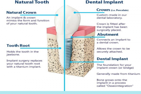 Everything to Know About Dental Implant - George Pegios Infographic