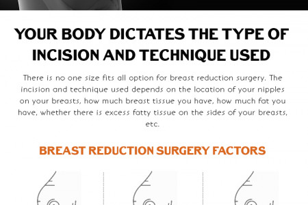 Everything You Need to Know About Breast Reduction Surgery Infographic