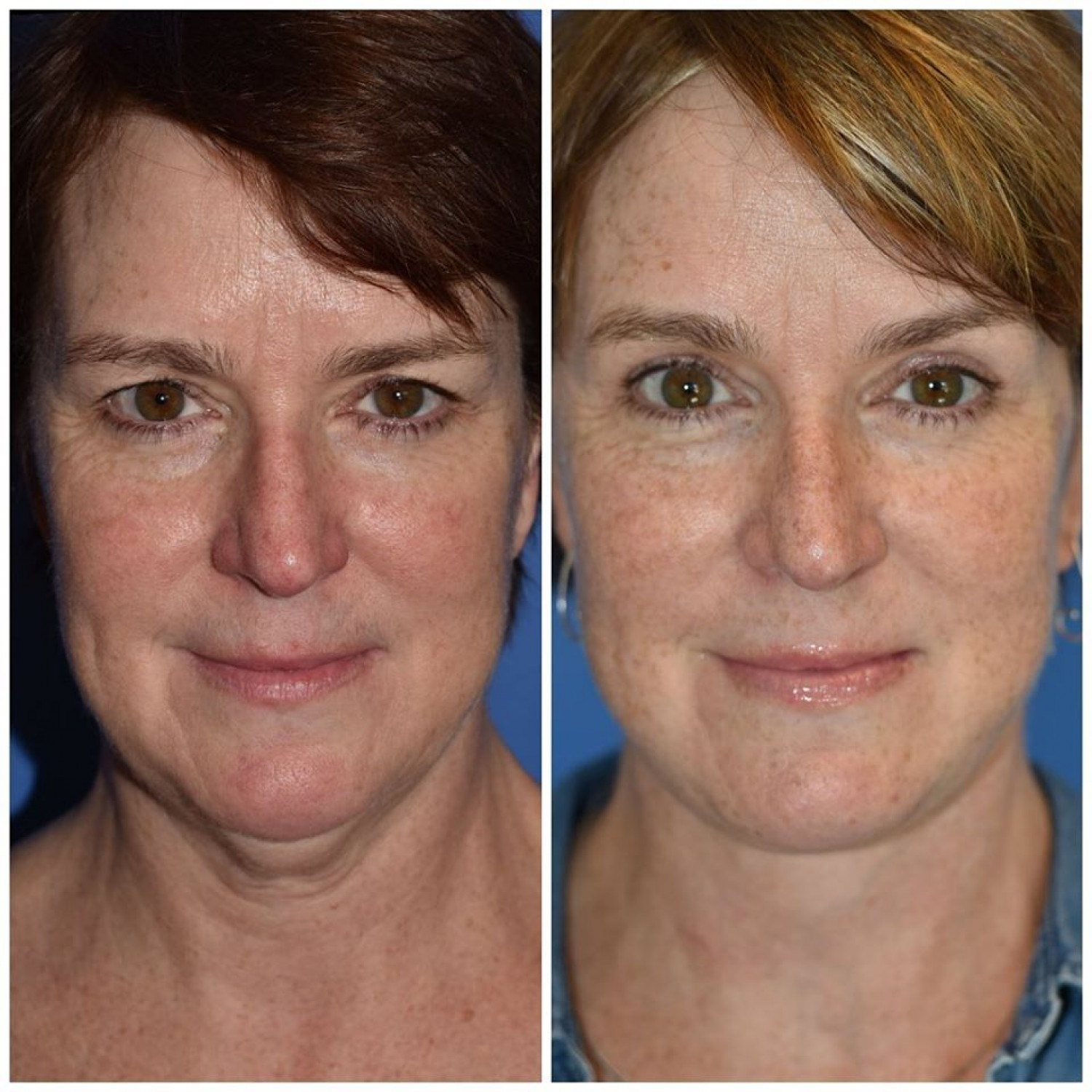 Facelift Surgery Seattle WA Infographic
