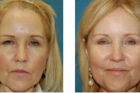 Facial Plastic Surgery of Beaumont Facelift Infographic