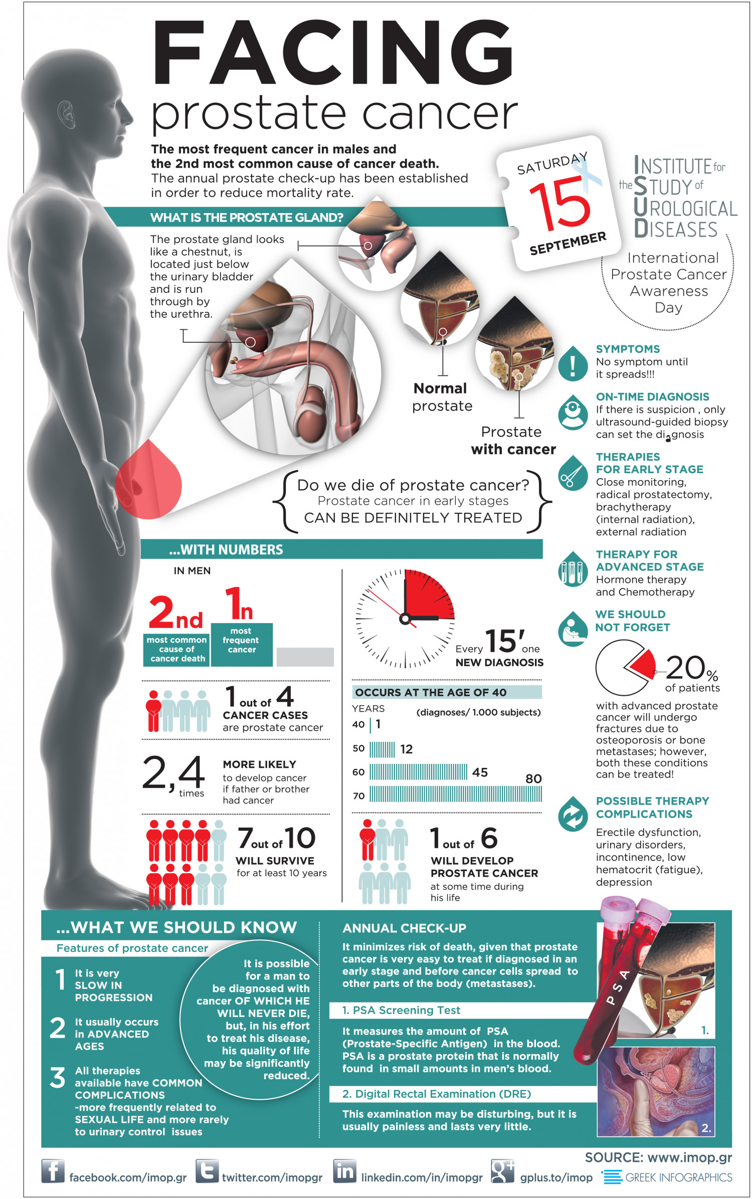 Facing Prostate Cancer Visual Ly