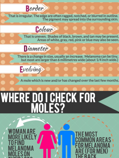 Facts About Moles Infographic, Mole Removal by Cosmedics Skin Clinics Infographic