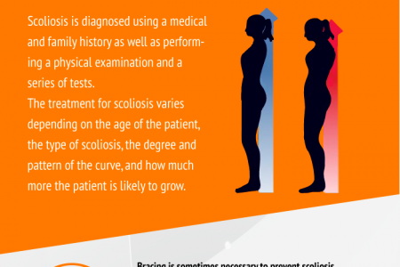 Facts About Scoliosis: Infographic