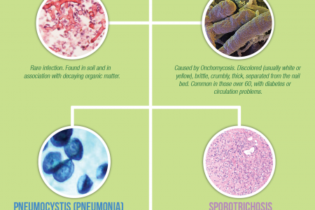 Family Tree of Fungal Disease  Infographic