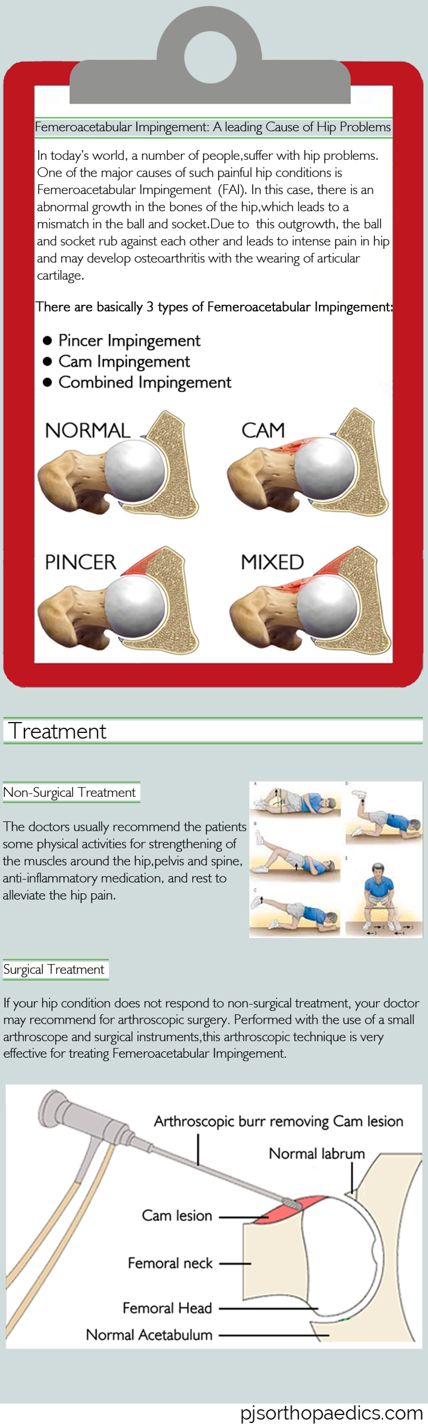 Femeroacetabular Impingement: A leading Cause of Hip Problems Infographic