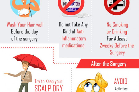 Few  Safety Tips for Hair Transplant Infographic