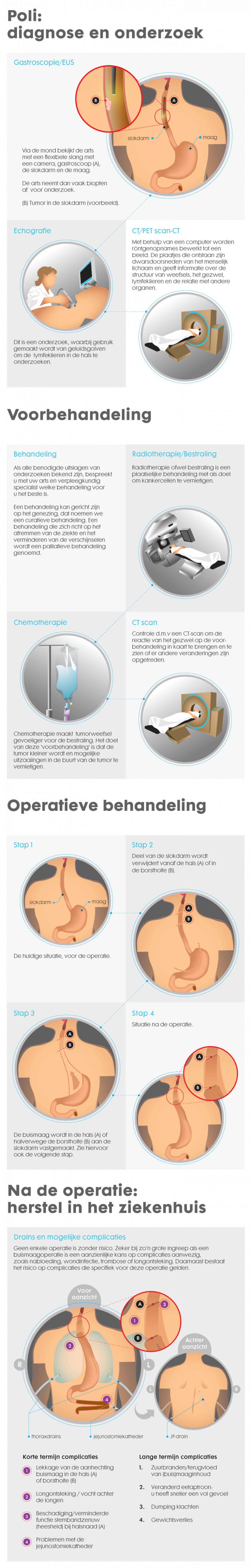 gastric tube operation Infographic