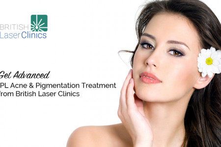 Get Advanced IPL Acne & Pigmentation Treatment from British Laser Clinics Infographic