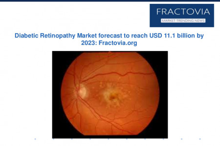 Global Diabetic Retinopathy Market share forecast to grow at 6.9% CAGR from 2016 to 2023 Infographic
