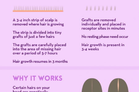 Hair Today, Hair Tomorrow: Getting Your Hair Back Infographic