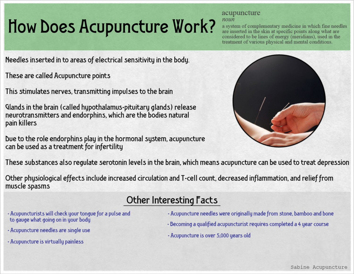 How acupuncture works Infographic