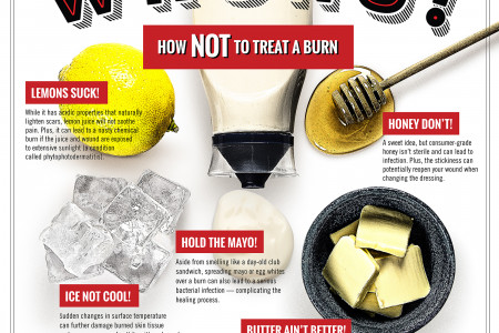 How NOT to Treat a Burn Infographic