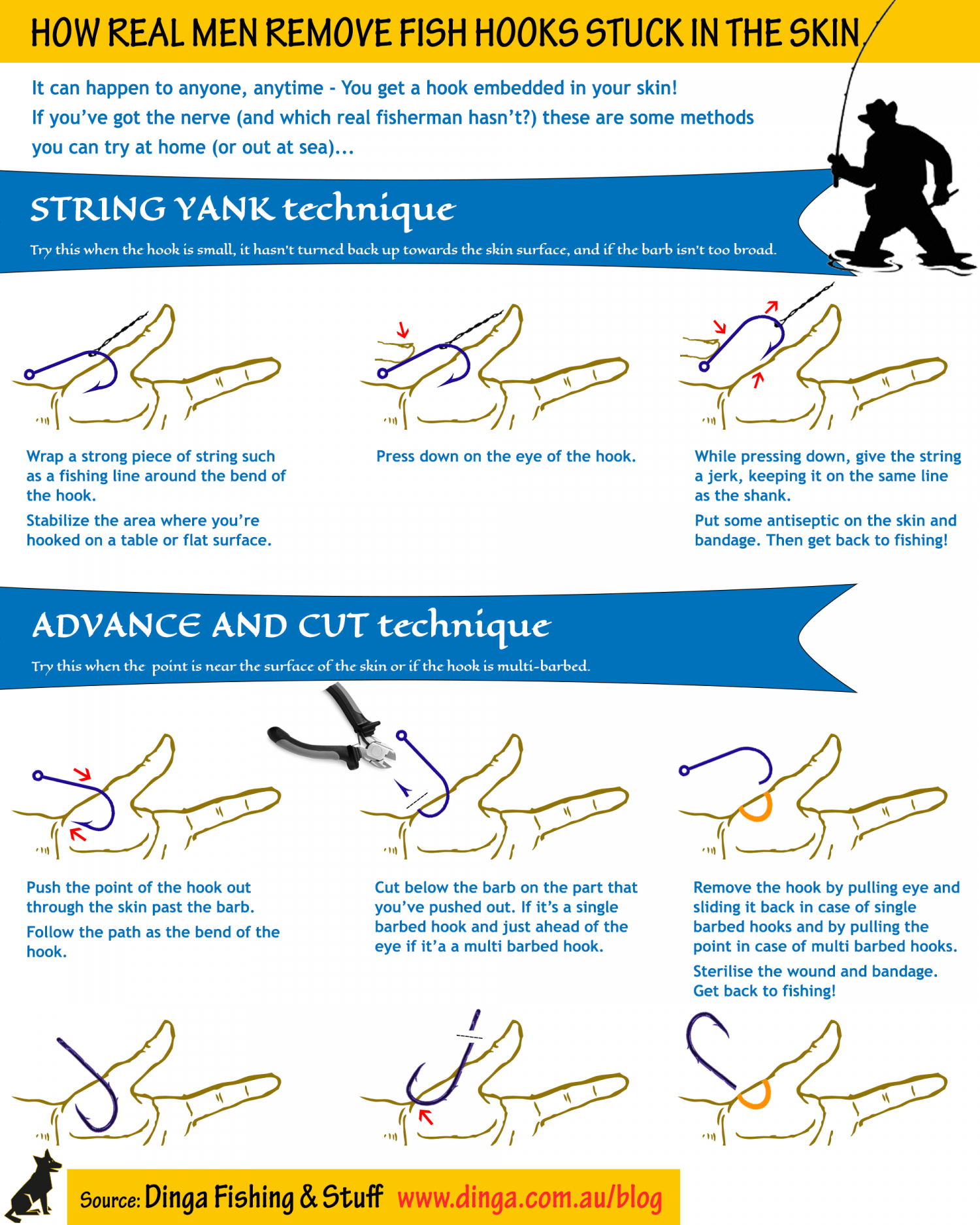How Real Men Remove Fish Hooks Stuck in the Skin Infographic