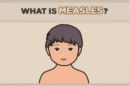 How to Prevent the Measles Outbreak for Affecting Your Loved Ones Infographic