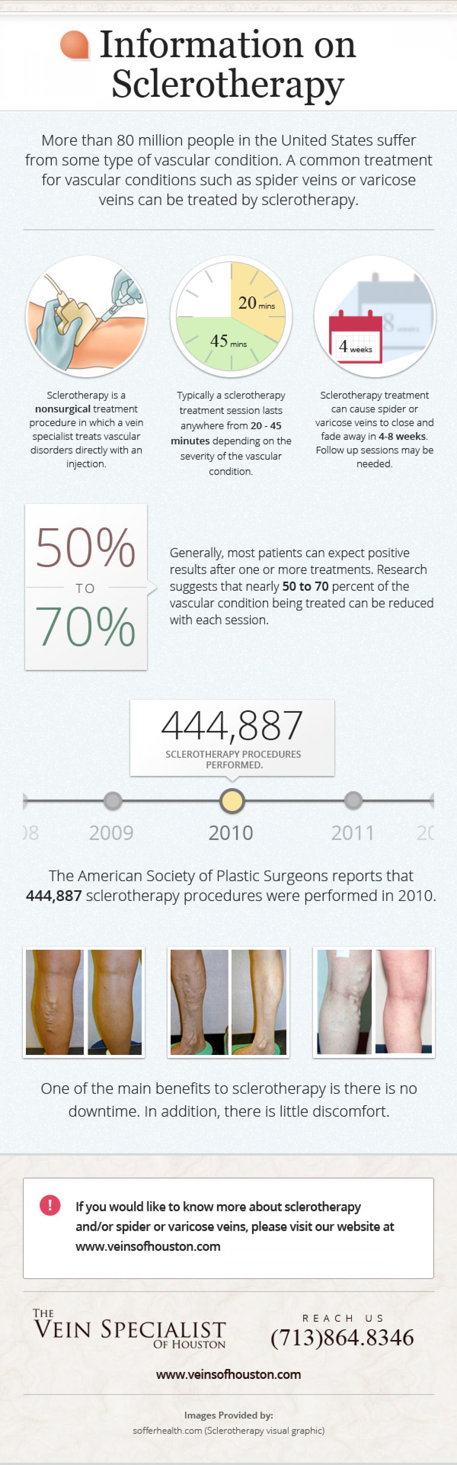 Information on Sclerotherapy Infographic