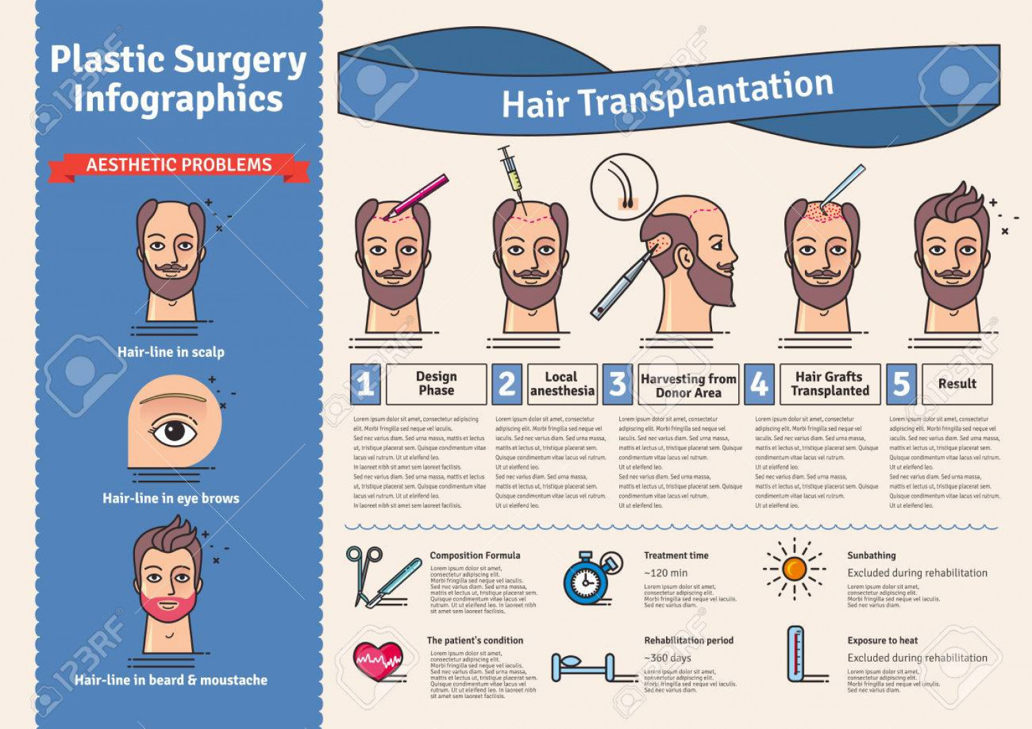 Is Hair Transplant Painful? Infographic