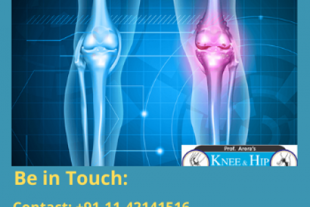 Joint Replacement Surgeon Delhi Infographic