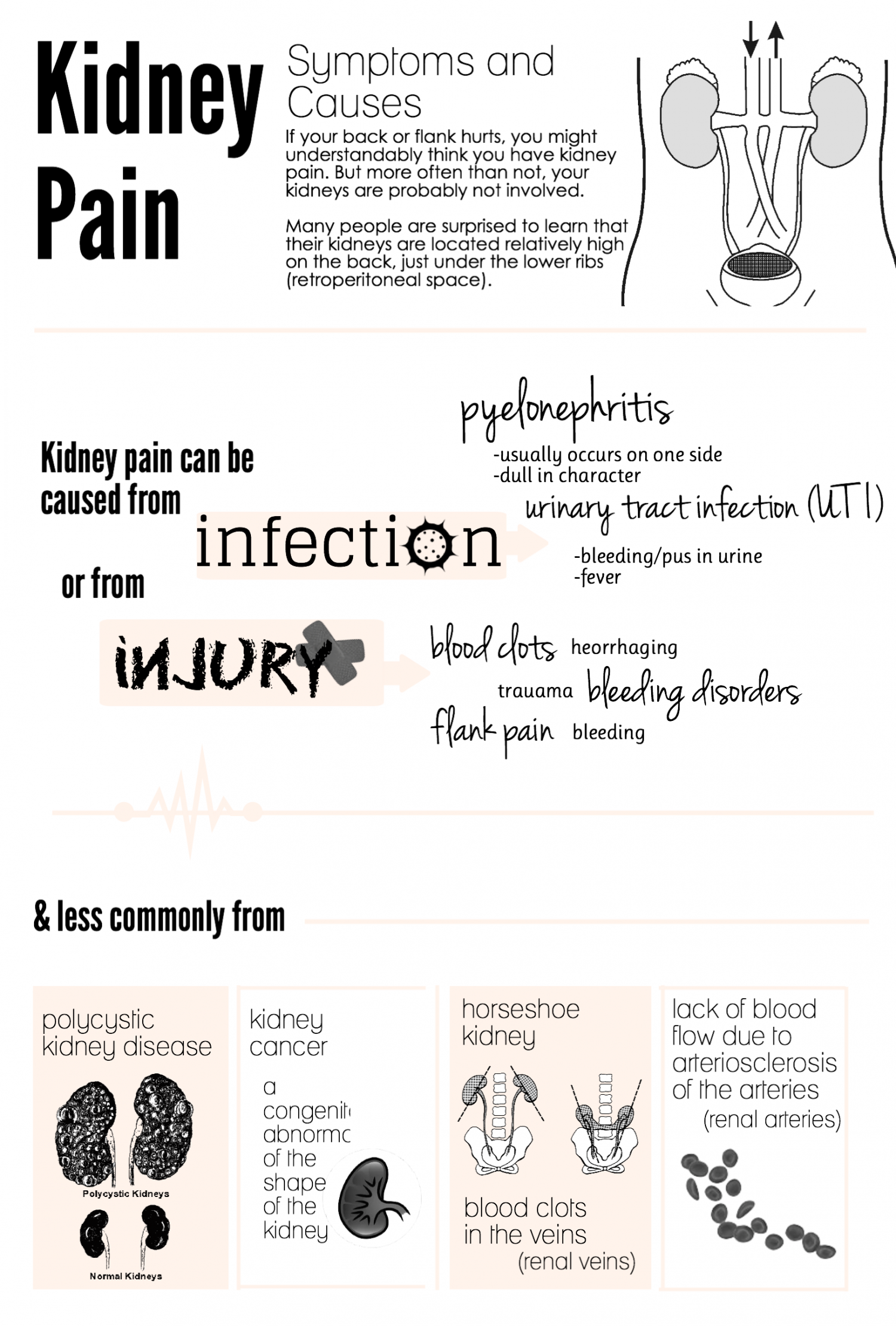 Kidney Pain Infographic