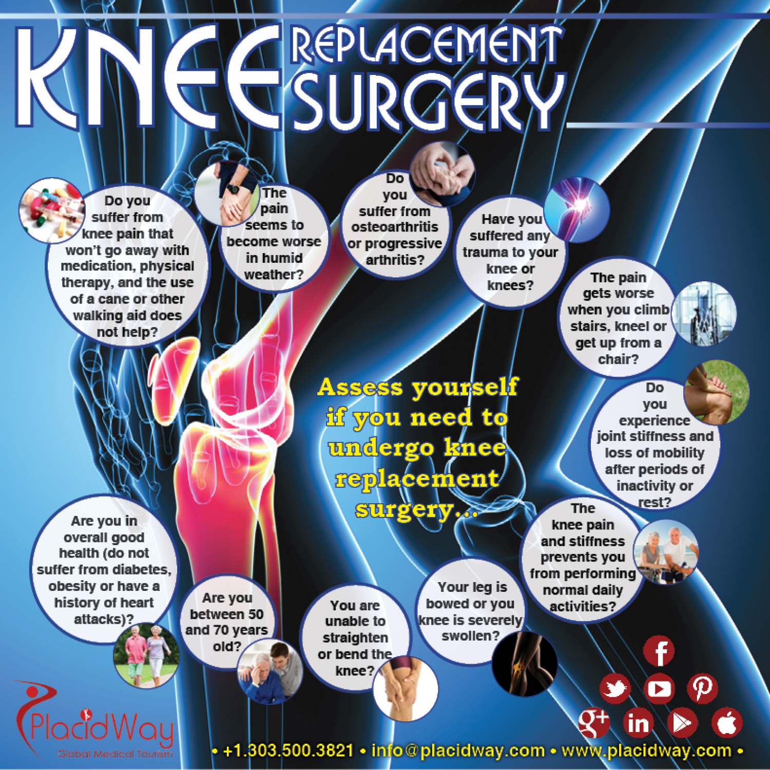 Knee Replacement Surgery Infographic