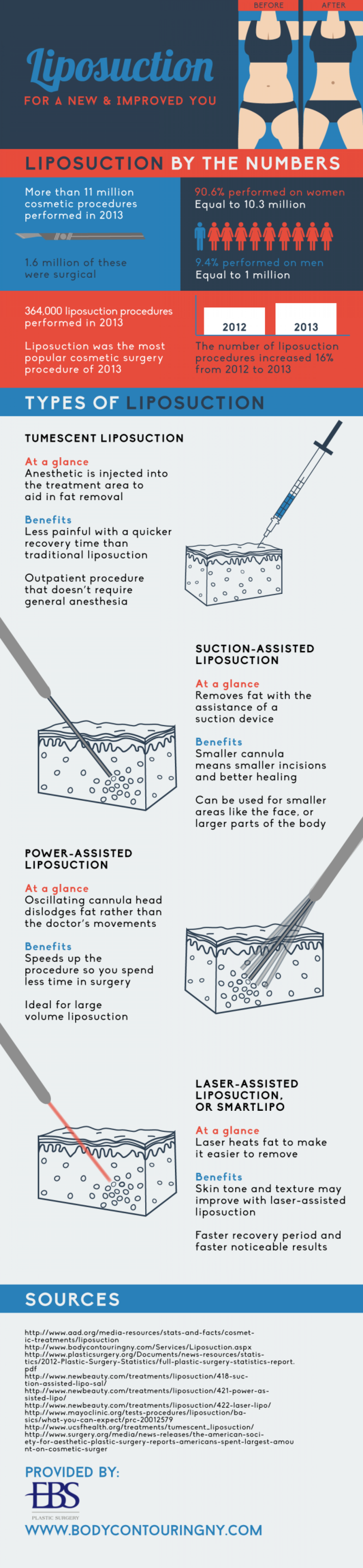 LIPOSUCTION FOR A NEW AND IMPROVED YOU Infographic