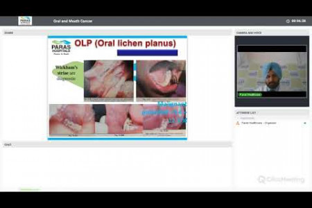 Live Webinar | Oral and Mouth Cancer | Dr. Parneet Singh, Paras Hospitals Panchkula. Infographic