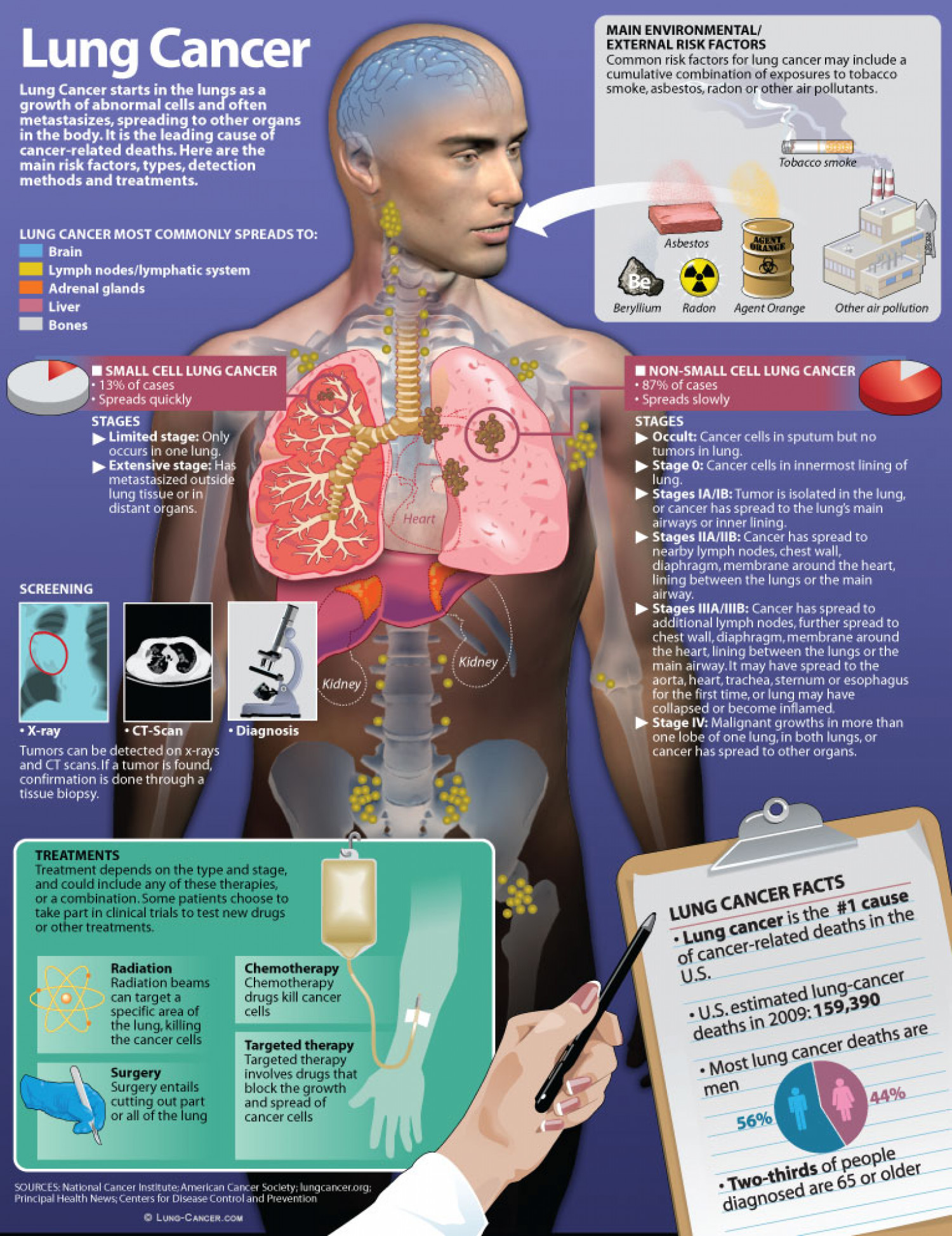 Lung Cancer Facts Infographic