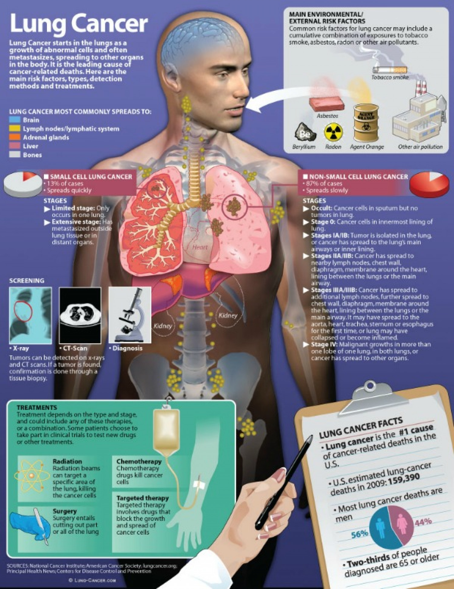 Lung Cancer Infographic Infographic