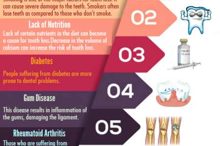Major Factors Responsible For Tooth Loss  Infographic