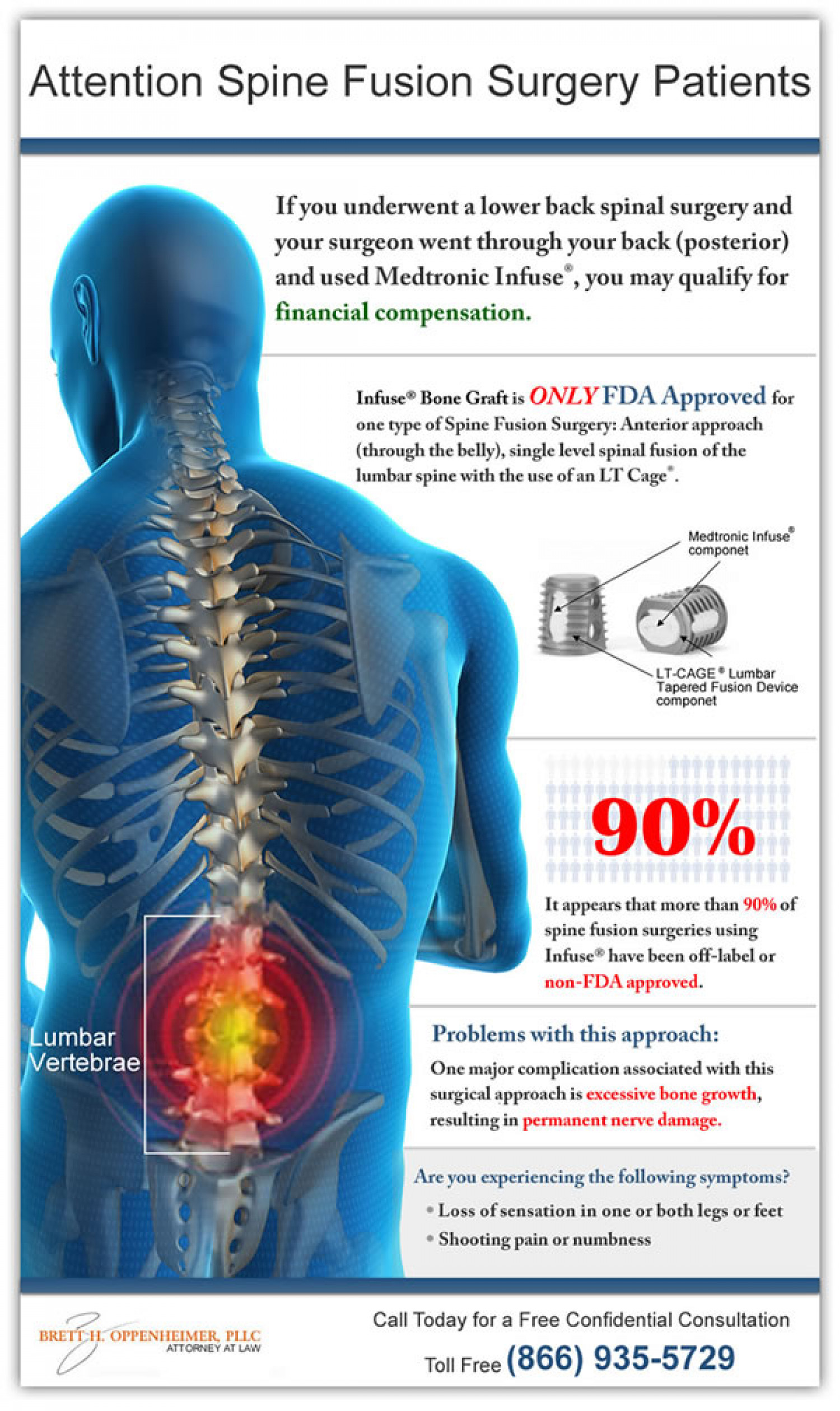 Medtronic Infuse® Bone Graft Lawsuit Infographic